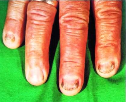 Грибок ногтей на руках и половых органах